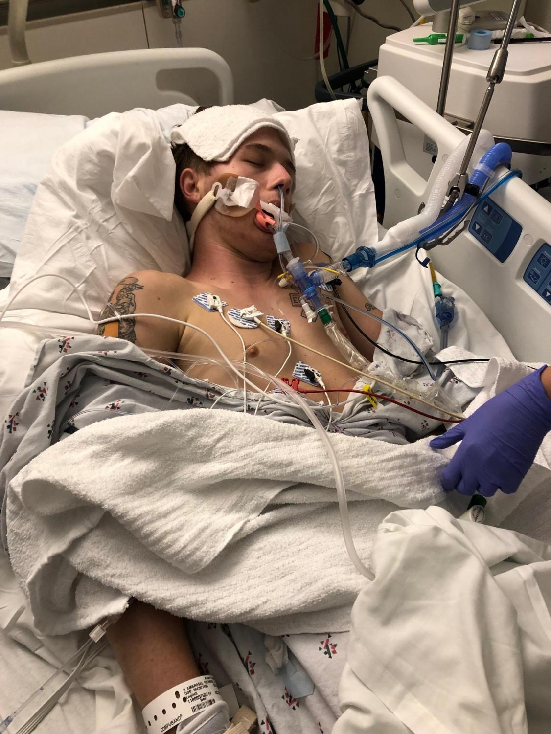 The result of a five-year nicotine addiction that eventually included vaping, 21-year-old Ricky D' Ambrosio was rushed to the hospital earlier this year after his flu-like symptoms gradually worsened. Physicians determined D'Ambrosio's vaping caused his then-critical medical condition.
